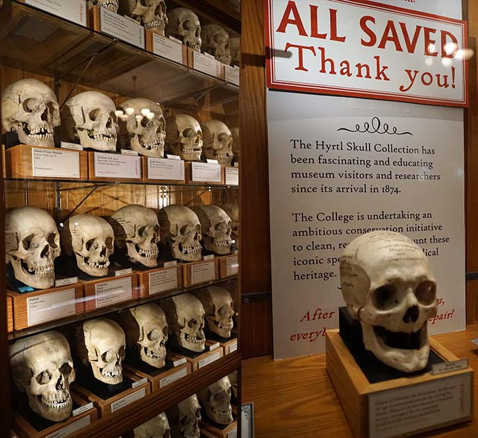Mütter Museum famous skulls einstein brain