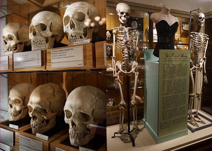 ribcage skeleton corset effect