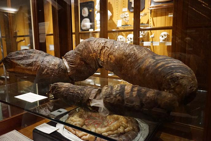 mutter museum giant colon