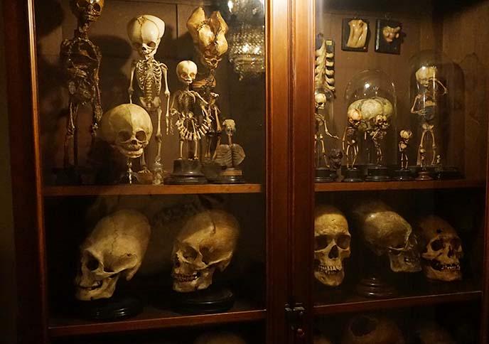 baby human skeletons, skulls