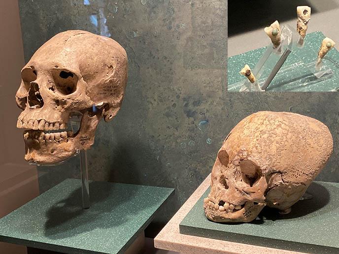 mayan deformed skulls aliens forehead